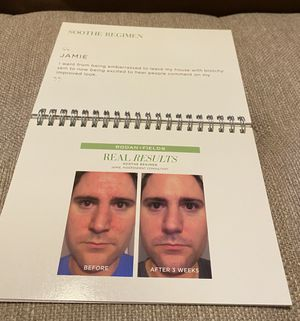 Rodan + Fields Before and After Flip Book for Sale in Chandler, AZ