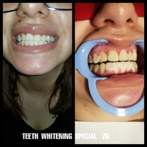 Teeth whitening for Sale in Lakewood, CO