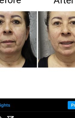 Radiofrequency Facials - Follow Me On Instagram @ body_by_syn for Sale in Norwalk,  CA