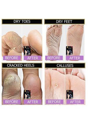 Free shipping-Foot peel mask, 2 Pairs peel, make your feet Soft, exfoliating foot mask, repair rough heels, get silky soft feet, tested in germany (r for Sale in Cumming, GA
