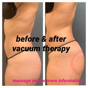 Natural butt lift with vacuum therapy 😍 for Sale in Lynwood, CA