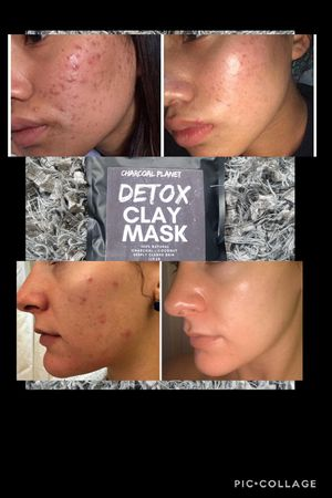 Charcoal detox face mask bye acne! for Sale in Irvine, CA