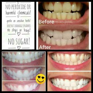 Whitening Toothpaste for Sale in Charlotte, NC