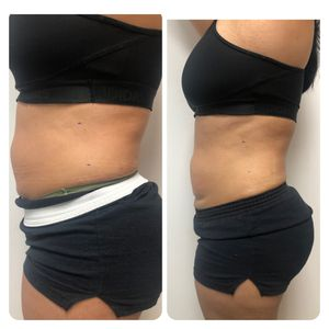 Cavi Lipo & Radio Frequency for Sale in Claremont, CA
