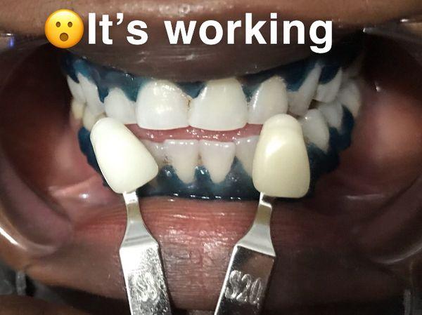 Instant Teeth Whitening