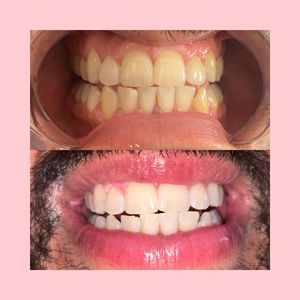 Teeth whitening for Sale in Montebello, CA