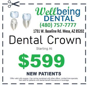 Dental Crown $599 for Sale in Tempe, AZ