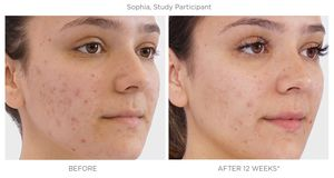 Rodan and Fields #1 Acne and Anti Aging Skincare Brand in North America for Sale in Victorville, CA