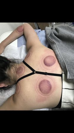 pain relief acupuncture cupping sale for Sale in El Monte,  CA