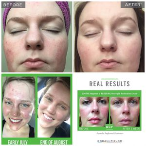 Rodan and Fields SOOTHE 60 day regimen for Sale in Reno, NV