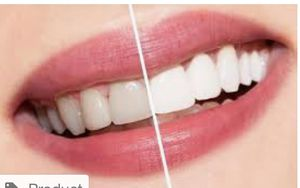 Blanqueamiento dental en una hora solo $150 descuento grande for Sale in Pembroke Pines, FL