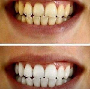 AP-24 Whitening Toothpaste for Sale in Asher, OK