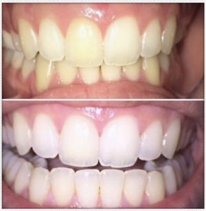 Teeth whitening for Sale in Hollywood, FL