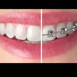 Kleaning Retainers Night Guards Bleaching Whitening Removal Of Braces Dentures Flipper for Sale in Torrance, CA