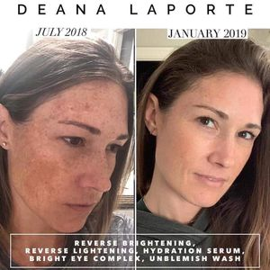 Rodan and fields for Sale in Mesa, AZ