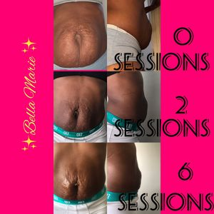 Body Sculpting Training and Sessions available *i am an Experienced tech not new for Sale in Atlanta, GA