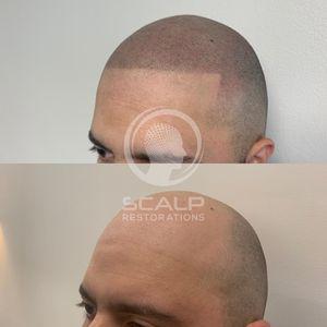 Scalp micropigmentation for Sale in Miami, FL