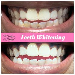 Teeth Whitening for Sale in Houston,  TX
