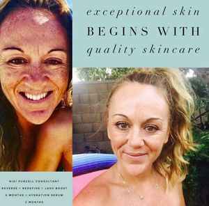 Skin and Lash Transformations Courtesy of Rodan + Fields for Sale in Spring Hill, FL
