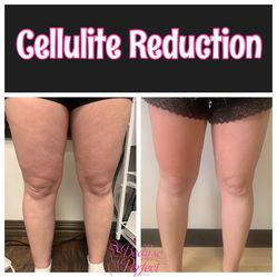 Cellulite Reduction for Sale in Houston,  TX