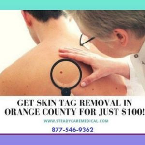 🏅Hey Get Skin tag Removal treatment Deal for Sale in North Tustin, CA
