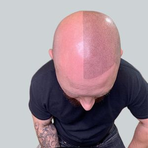 Visualize the new You! Scalp Micro Pigmentation for Sale in Reading, PA
