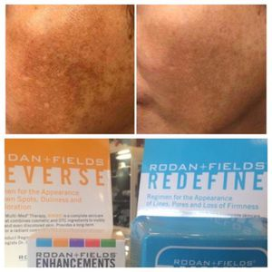 Rodan and Fields for Sale in Lakewood, OH