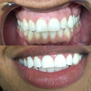 3-4 Series Professional Teeth Whitening for Sale in Baltimore, MD