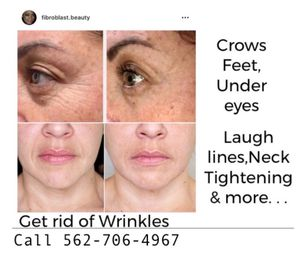Skin tightening-permanent results 👍 for Sale in Norwalk, CA