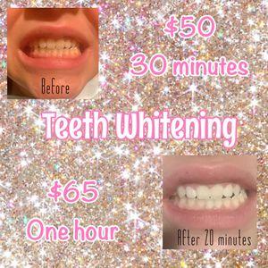 Whitening Teeth for Sale in Houston, TX