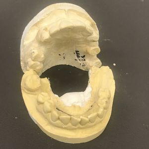 Dentures, Partials, and Retainers for Sale in Ontario, CA
